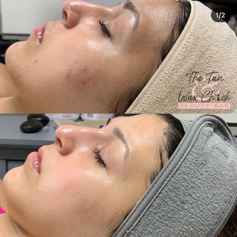 skin-care-before-and-after-04