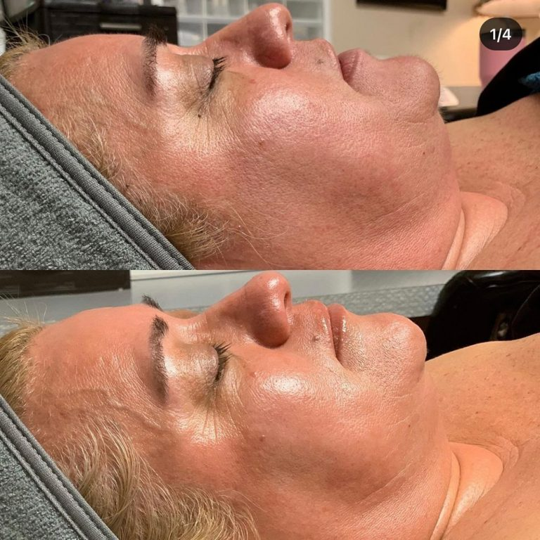 skin-care-before-and-after-06