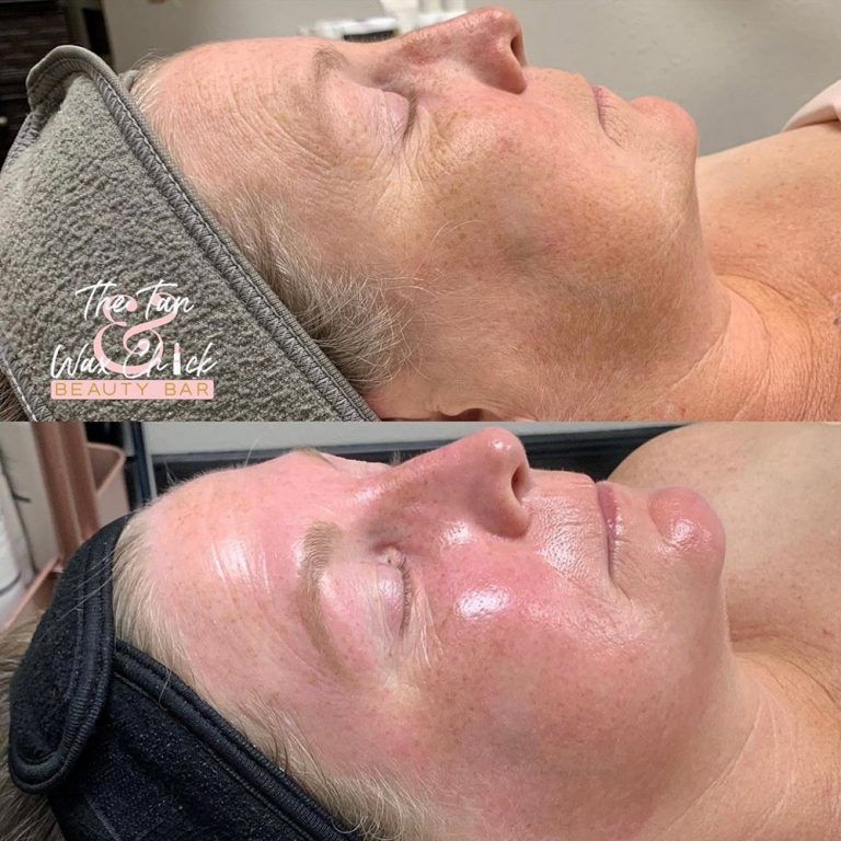 skin-care-before-and-after-07