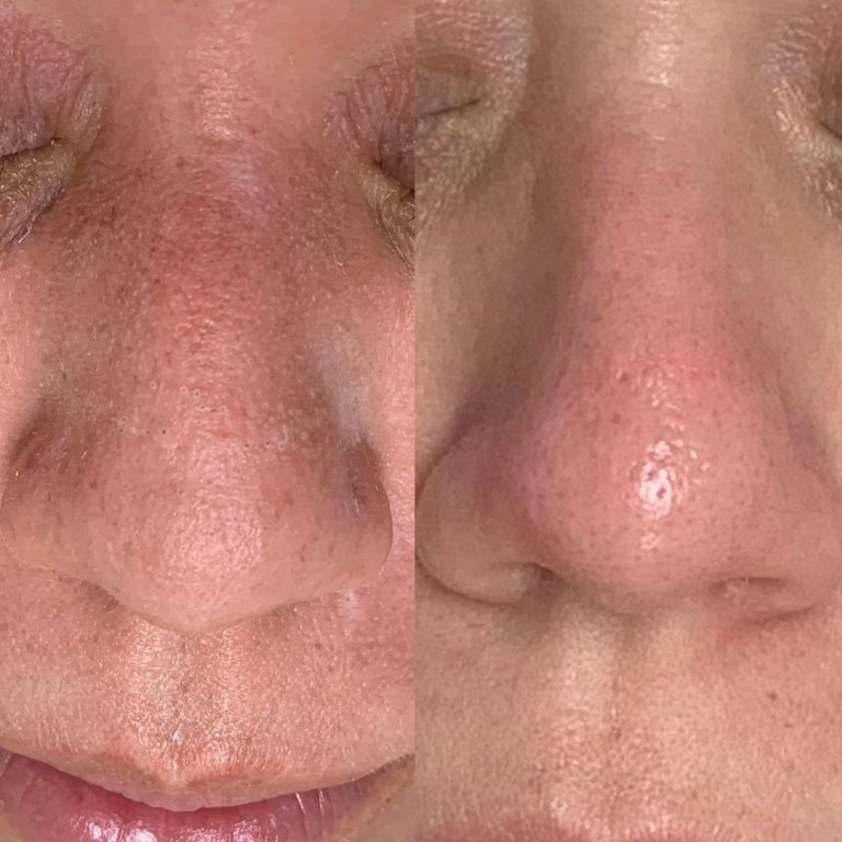 skin-care-before-and-after-10