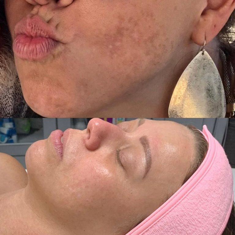 skin-care-before-and-after-12
