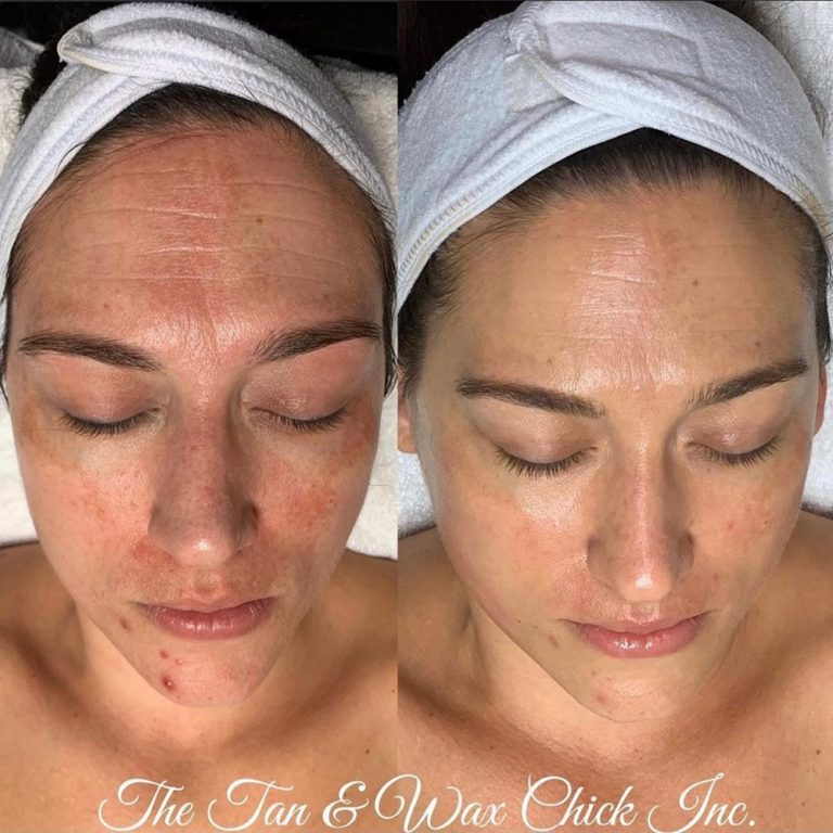 skin-care-before-and-after-14