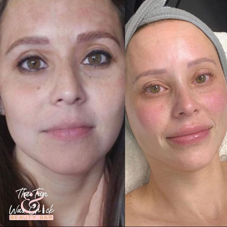 skin-care-before-and-after-17